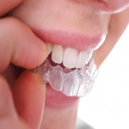 Добър стоматолог в Ямбол - доктор Мариана Дучева