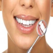 Почистване на зъбен камък  профилактичен преглед Пловдив